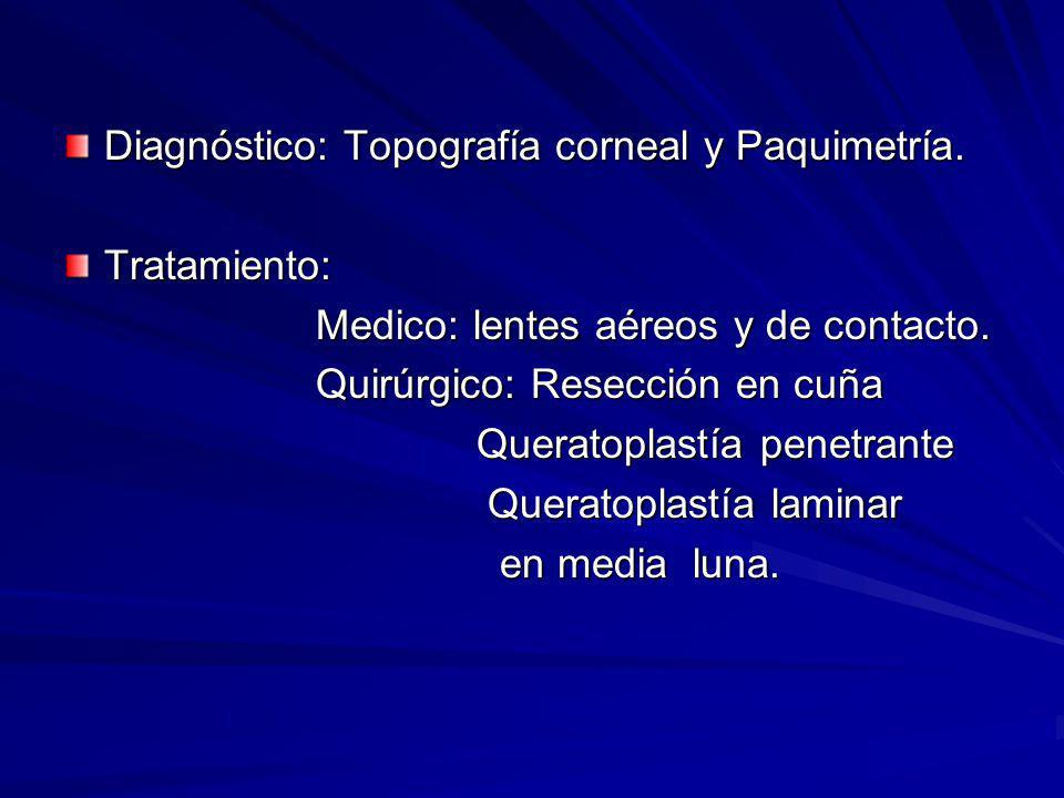 Diagnóstico: Topografía corneal y Paquimetría.