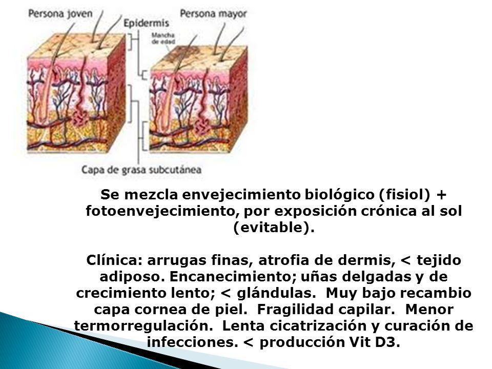 Se mezcla envejecimiento biológico (fisiol) + fotoenvejecimiento, por exposición crónica al sol (evitable).