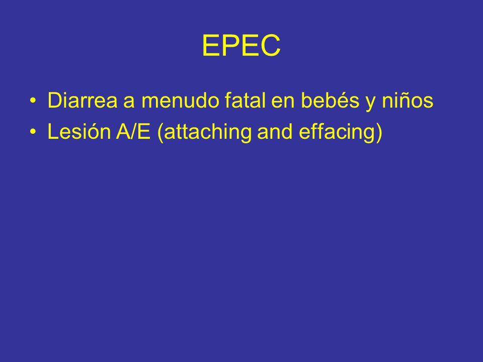 EPEC Diarrea a menudo fatal en bebés y niños