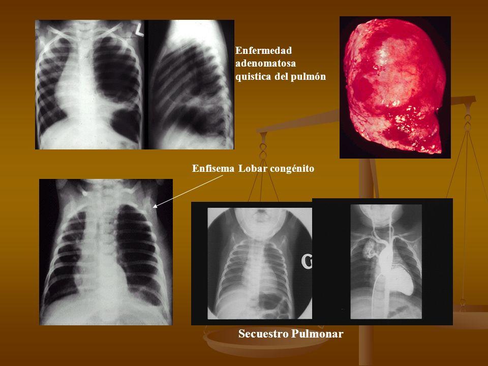 Secuestro Pulmonar Enfermedad adenomatosa quistica del pulmón