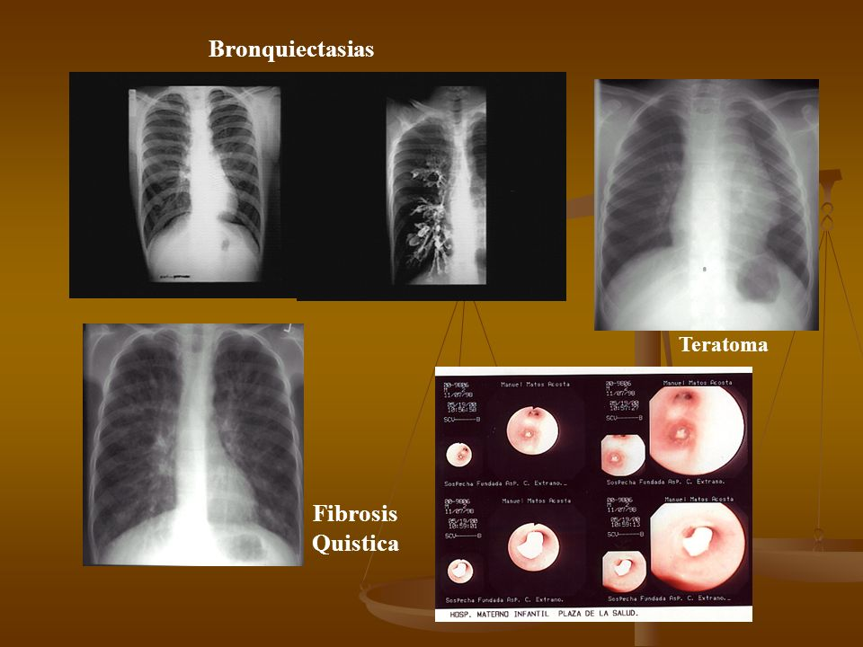 Bronquiectasias Teratoma Fibrosis Quistica