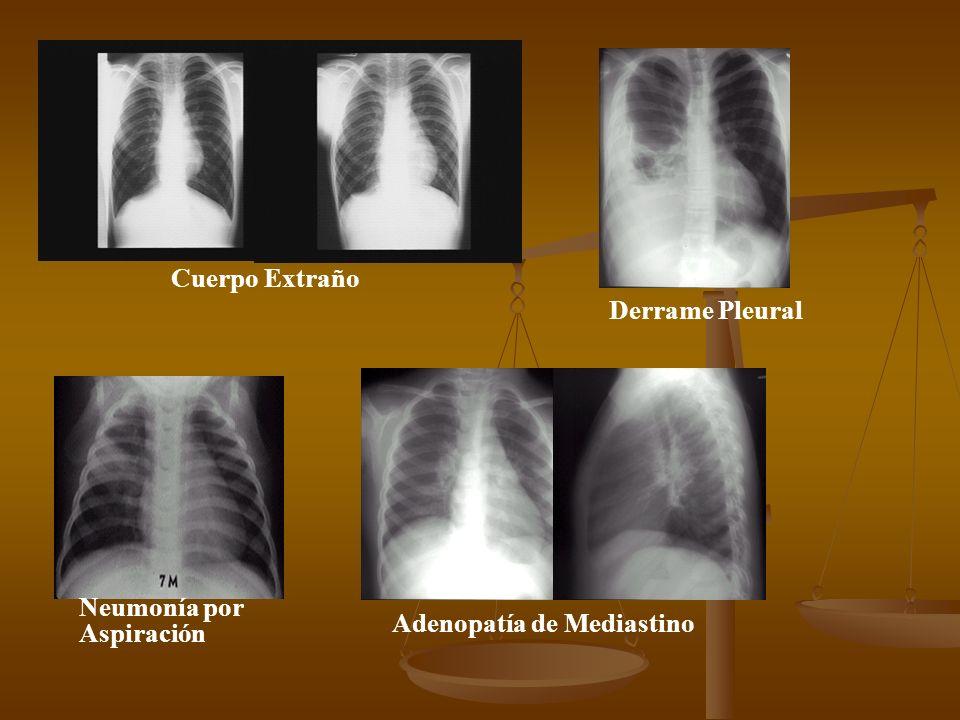 Cuerpo Extraño Derrame Pleural Neumonía por Aspiración Adenopatía de Mediastino