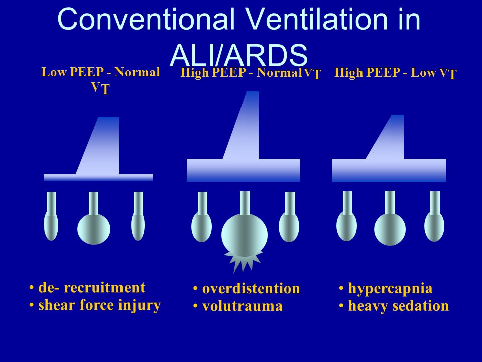 Conventional Ventilation in ALI/ARDS