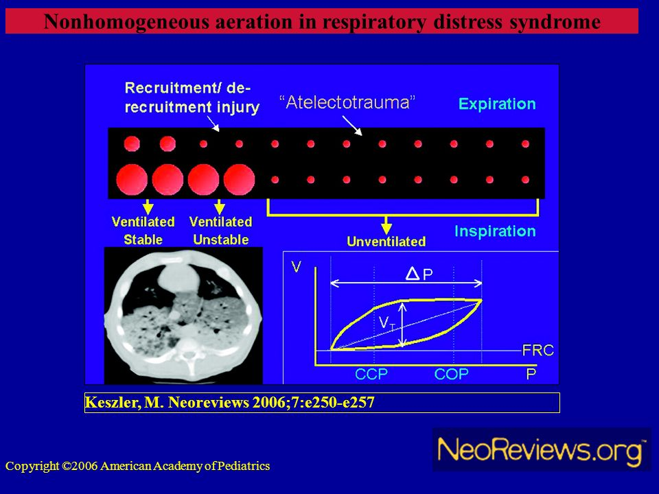 Nonhomogeneous aeration in respiratory distress syndrome