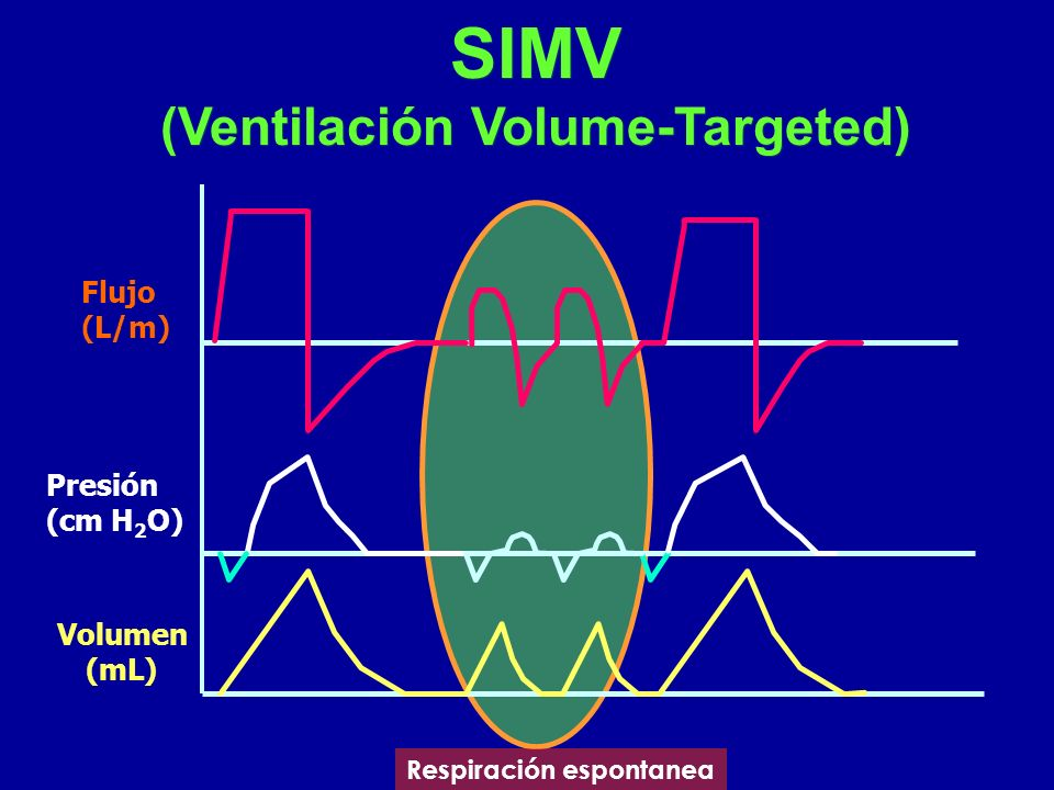 SIMV (Ventilación Volume-Targeted)