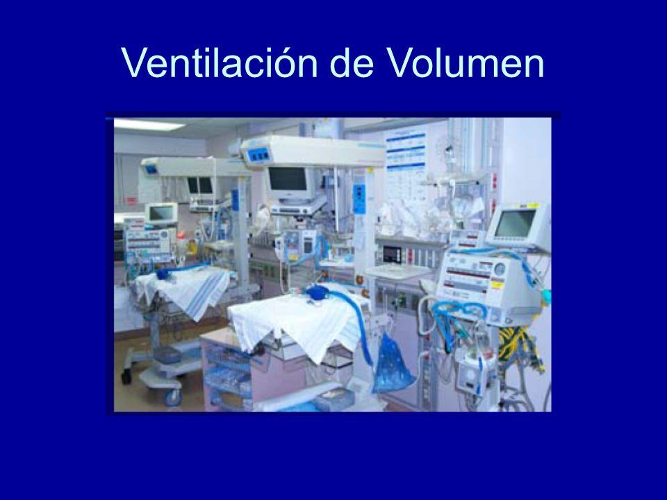 Ventilación de Volumen