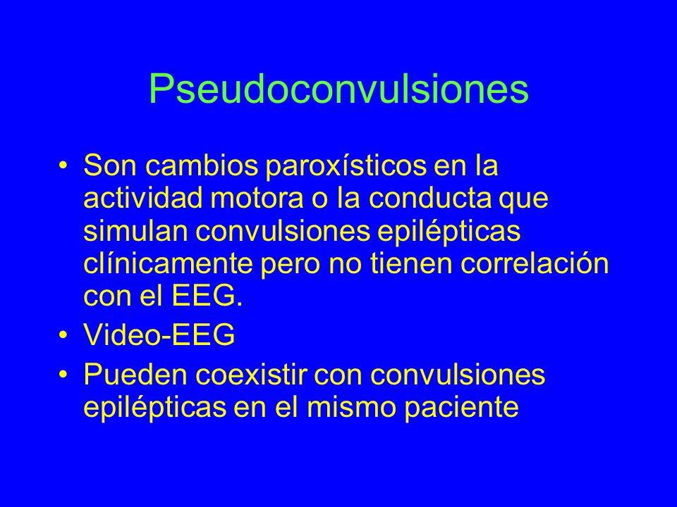 Pseudoconvulsiones