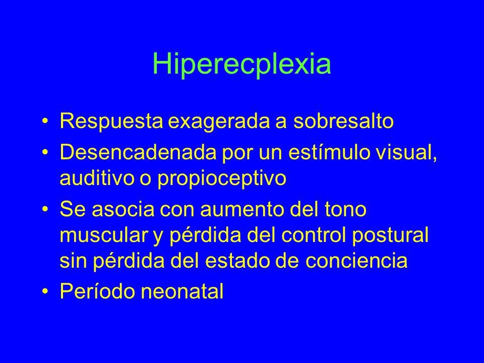 Hiperecplexia Respuesta exagerada a sobresalto