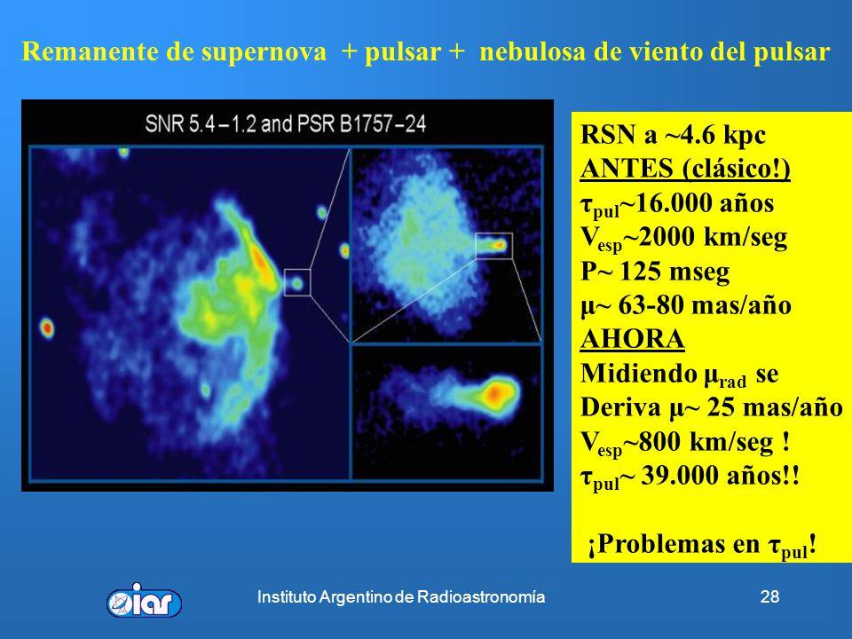 Remanente de supernova + pulsar + nebulosa de viento del pulsar
