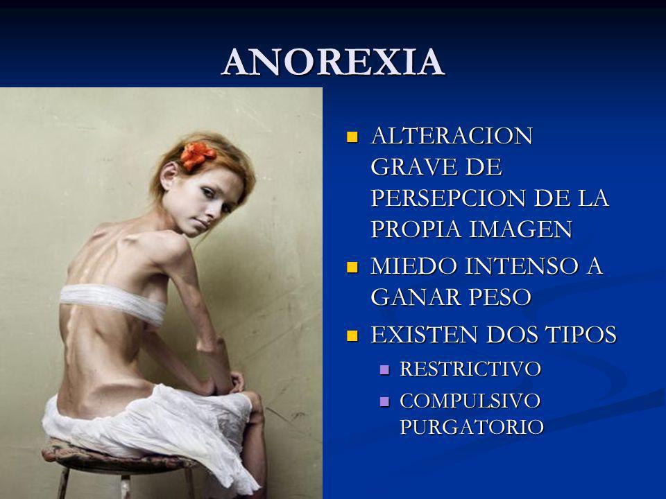 ANOREXIA ALTERACION GRAVE DE PERSEPCION DE LA PROPIA IMAGEN
