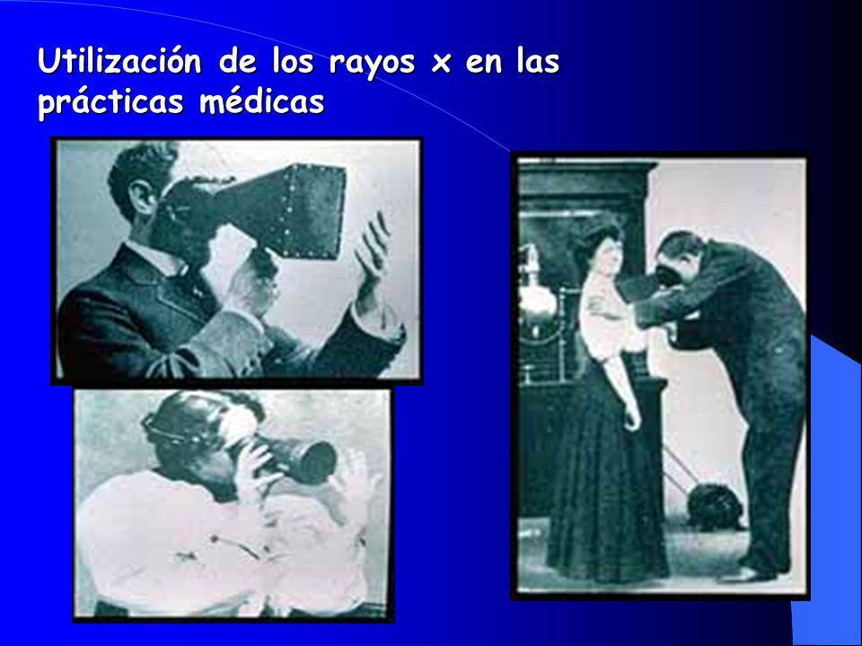 Utilización de los rayos x en las prácticas médicas