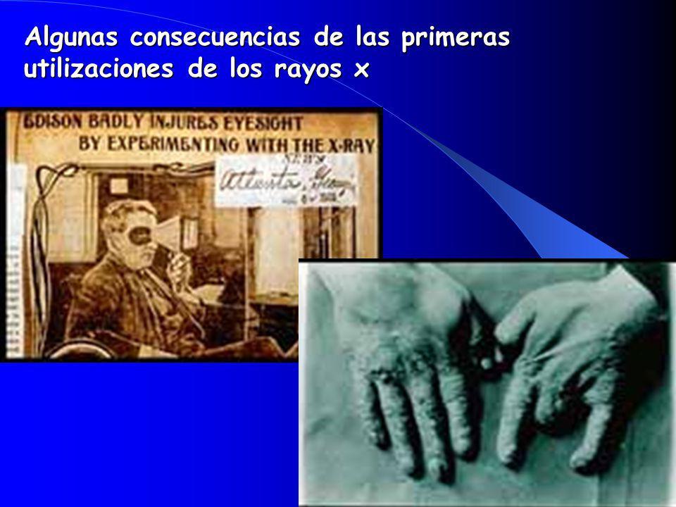 Algunas consecuencias de las primeras utilizaciones de los rayos x