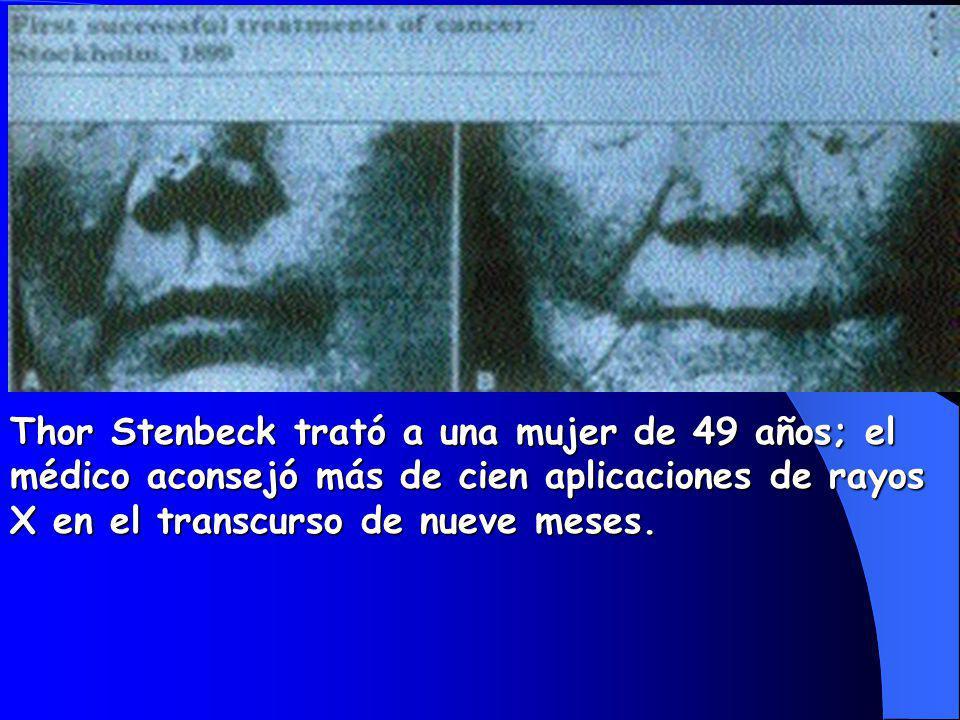 Los daños producidos en los médicos que manipulaban los rayos x como una herramienta de diagnóstico llevo a pensar que se podían utilizar para el tratamiento de algunos tumores superficiales.