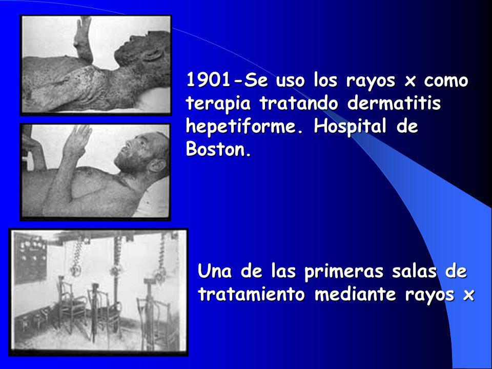 1901-Se uso los rayos x como terapia tratando dermatitis hepetiforme