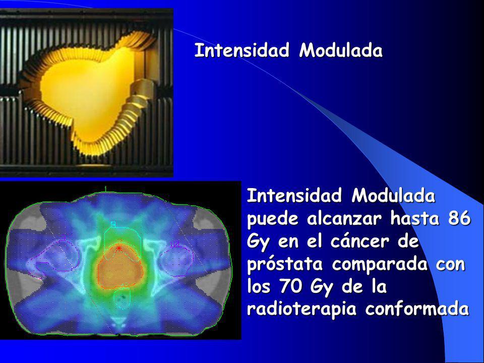Intensidad Modulada Intensidad Modulada puede alcanzar hasta 86 Gy en el cáncer de próstata comparada con los 70 Gy de la radioterapia conformada.