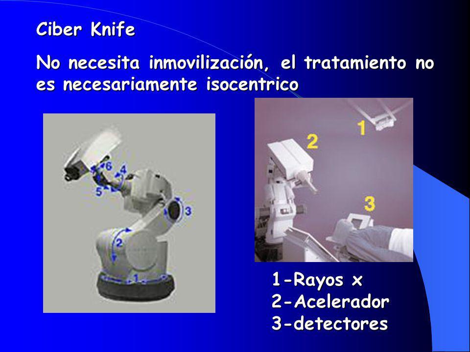 Ciber Knife No necesita inmovilización, el tratamiento no es necesariamente isocentrico.