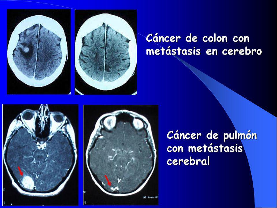 Cáncer de colon con metástasis en cerebro