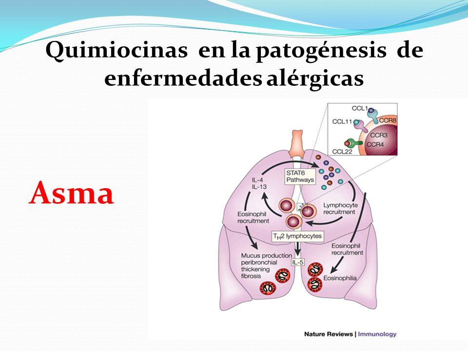 Quimiocinas en la patogénesis de enfermedades alérgicas