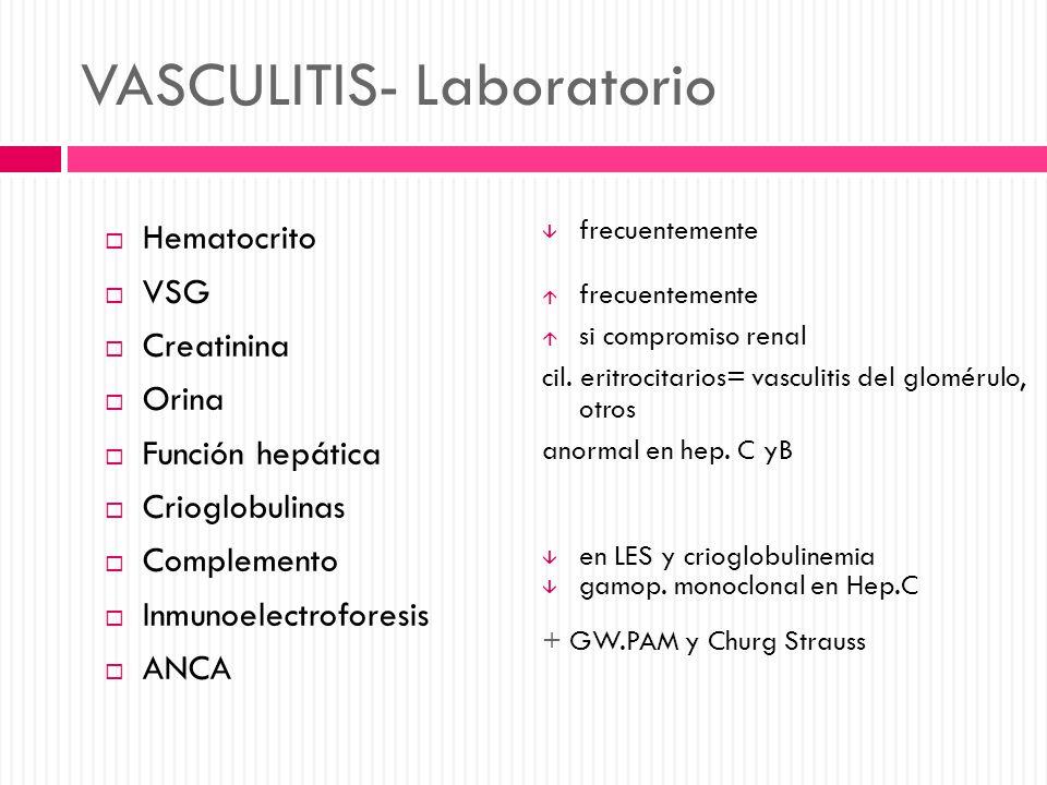 VASCULITIS- Laboratorio