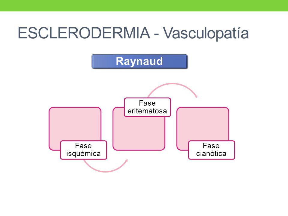 ESCLERODERMIA - Vasculopatía