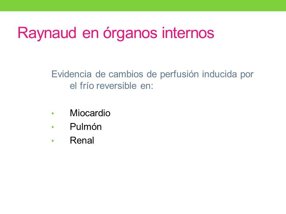 Raynaud en órganos internos