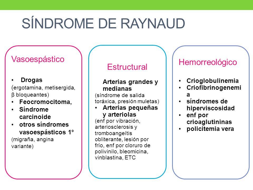SÍNDROME DE RAYNAUD Vasoespástico Hemorreológico Estructural Drogas