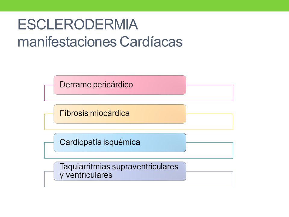 ESCLERODERMIA manifestaciones Cardíacas