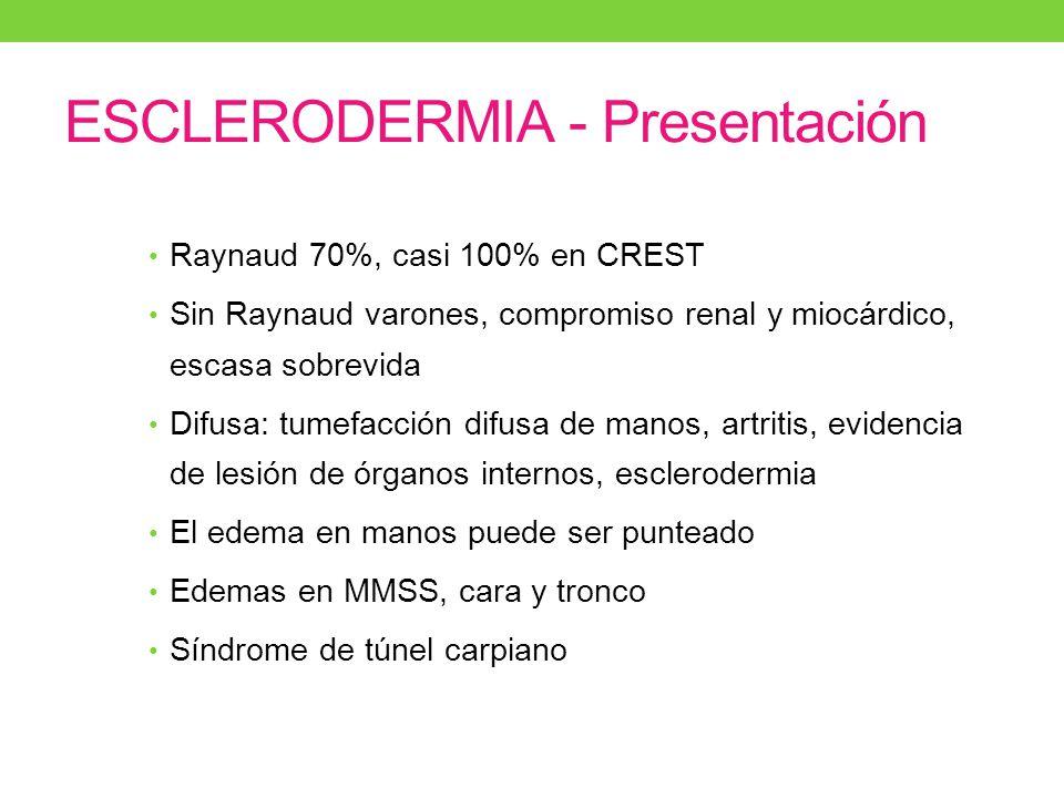ESCLERODERMIA - Presentación