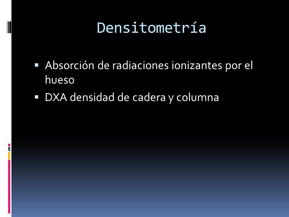 Densitometría Absorción de radiaciones ionizantes por el hueso