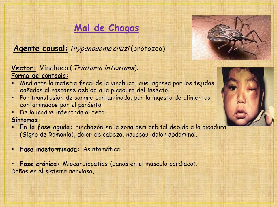 Mal de Chagas Agente causal:Trypanosoma cruzi (protozoo)