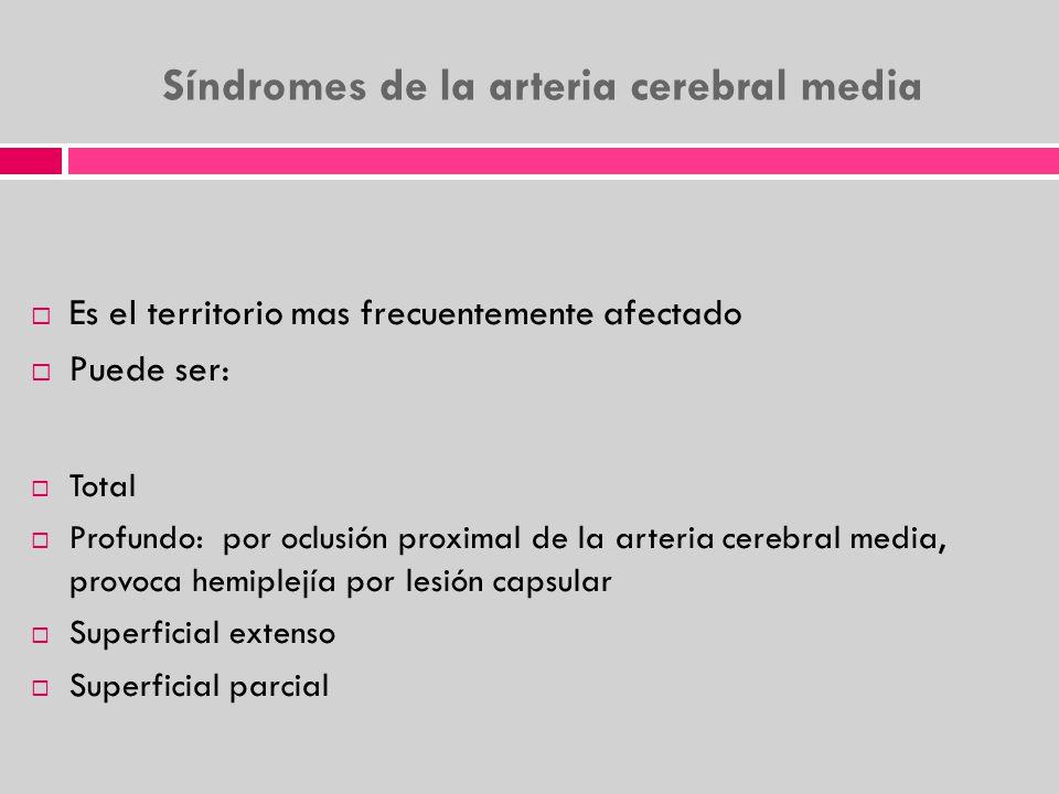 Síndromes de la arteria cerebral media