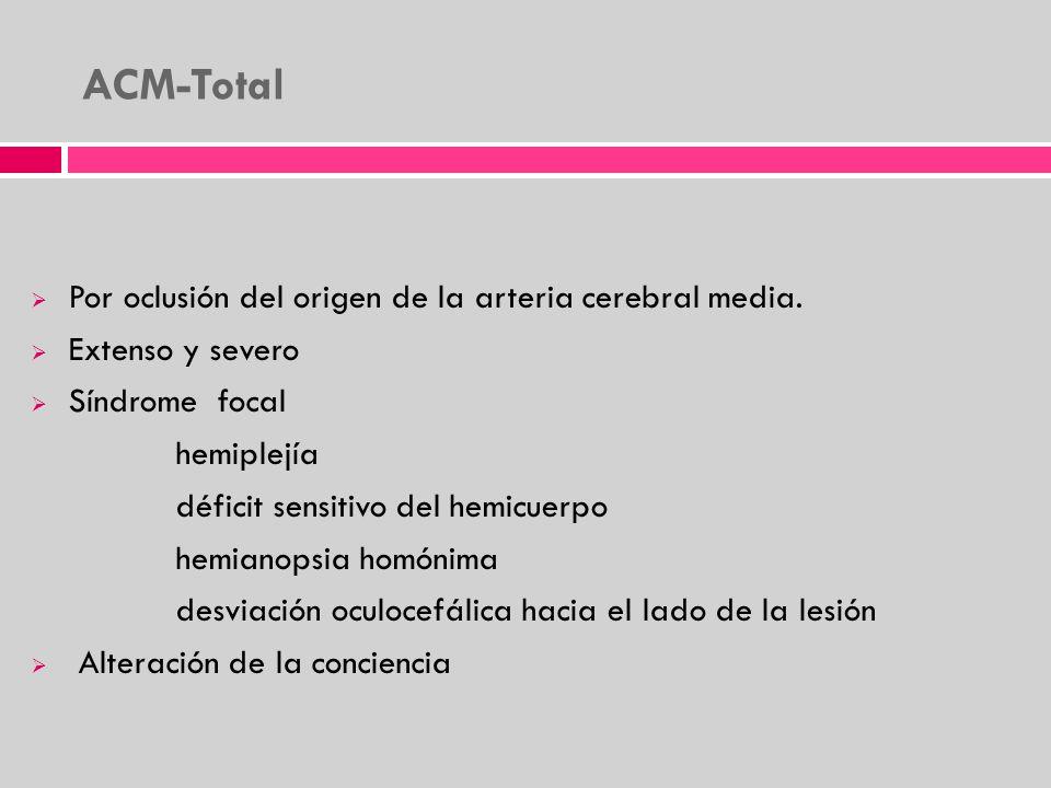 ACM-Total Por oclusión del origen de la arteria cerebral media.