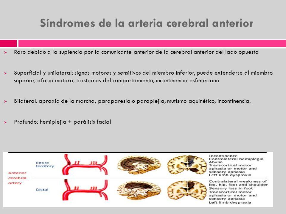 Síndromes de la arteria cerebral anterior