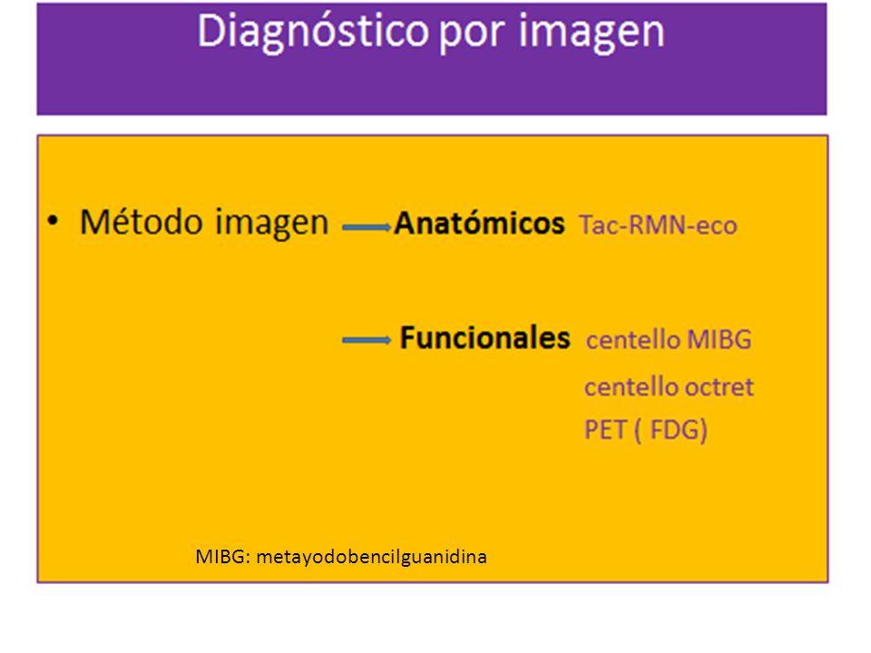 mi MIBG: metayodobencilguanidina