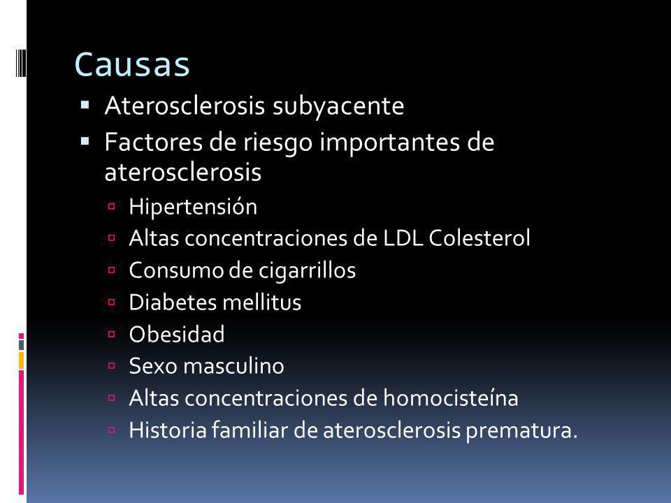 Causas Aterosclerosis subyacente