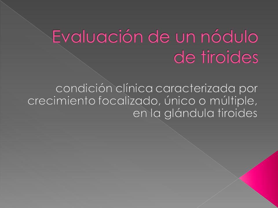 Evaluación de un nódulo de tiroides