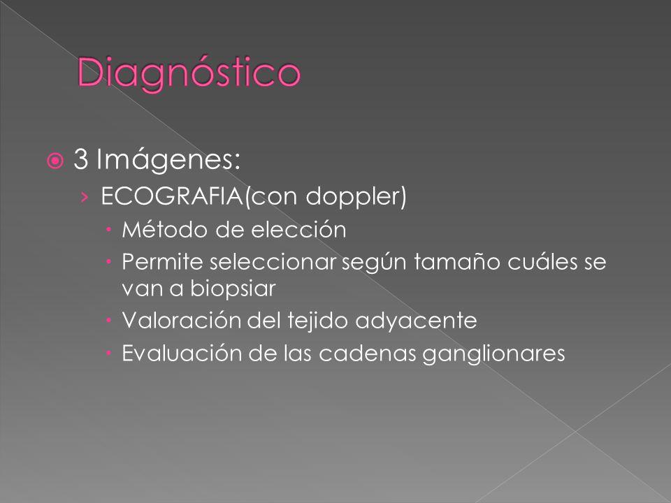 Diagnóstico 3 Imágenes: ECOGRAFIA(con doppler) Método de elección