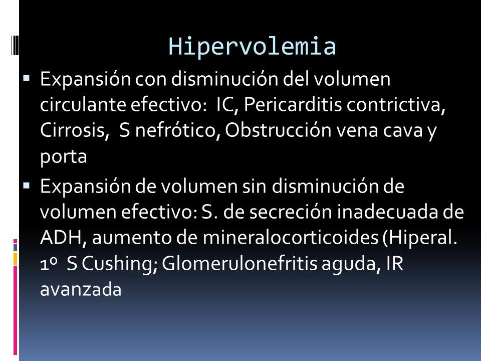Hipervolemia
