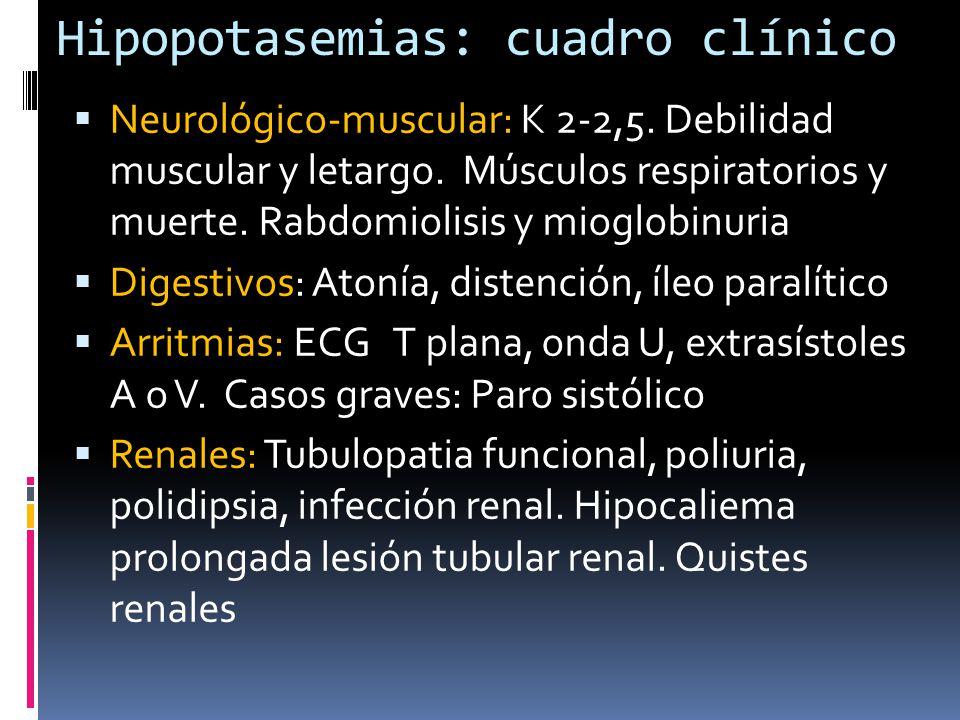Hipopotasemias: cuadro clínico