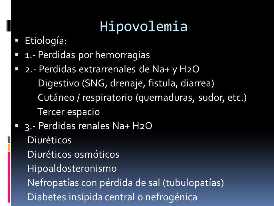Hipovolemia Etiología: 1.- Perdidas por hemorragias