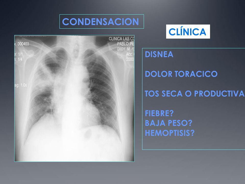 CONDENSACION CLÍNICA DISNEA DOLOR TORACICO TOS SECA O PRODUCTIVA