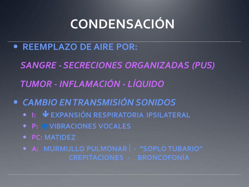 CONDENSACIÓN REEMPLAZO DE AIRE POR: