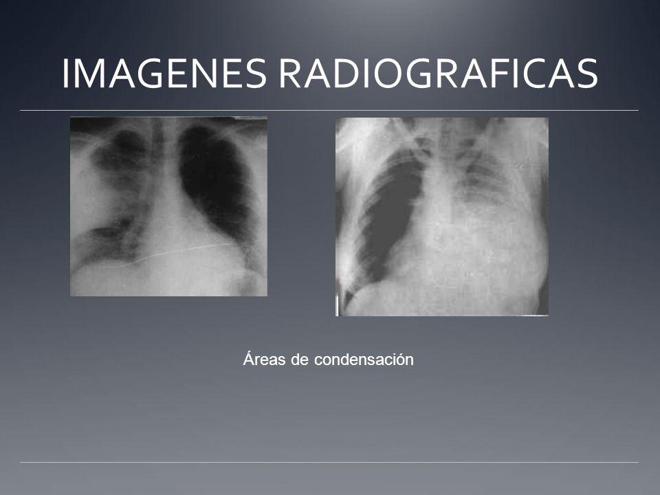 IMAGENES RADIOGRAFICAS