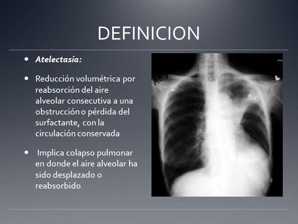 DEFINICION Atelectasia: