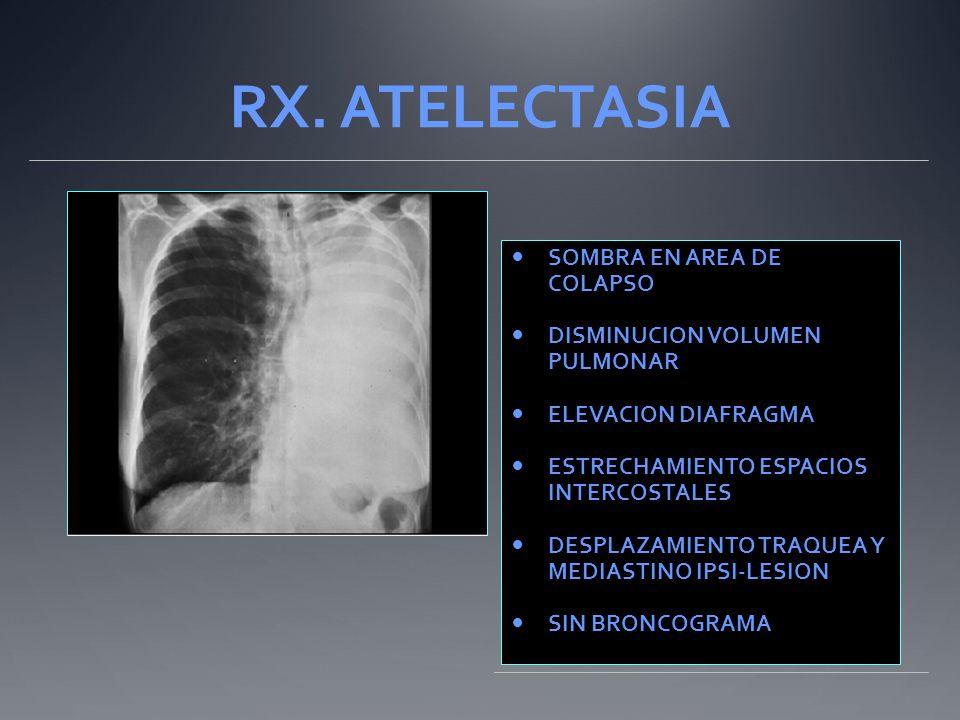 RX. ATELECTASIA SOMBRA EN AREA DE COLAPSO DISMINUCION VOLUMEN PULMONAR