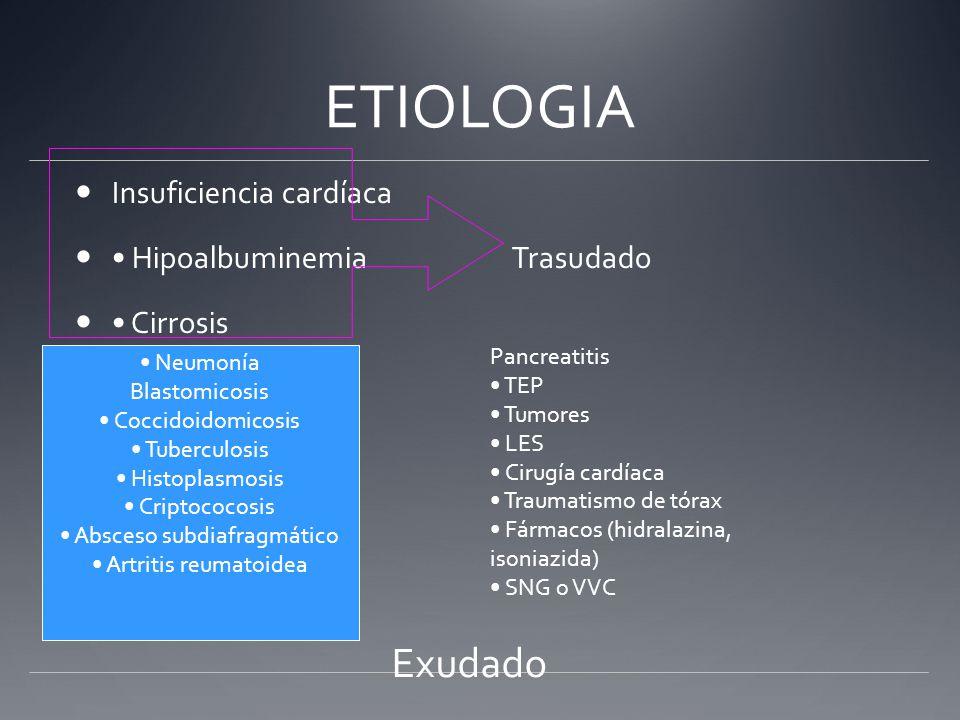 ETIOLOGIA Exudado Insuficiencia cardíaca • Hipoalbuminemia Trasudado