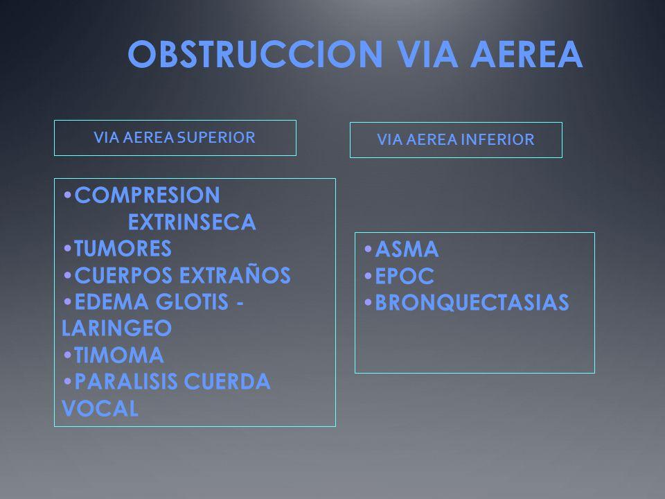 OBSTRUCCION VIA AEREA COMPRESION EXTRINSECA TUMORES CUERPOS EXTRAÑOS