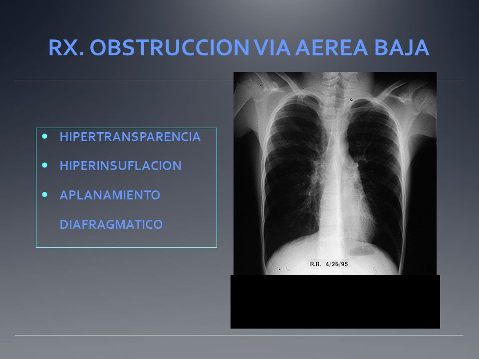 RX. OBSTRUCCION VIA AEREA BAJA