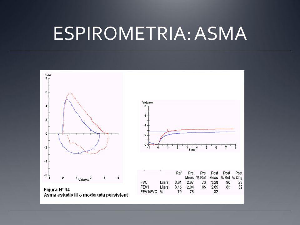 ESPIROMETRIA: ASMA
