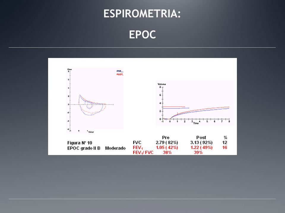 ESPIROMETRIA: EPOC